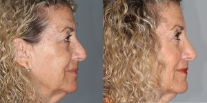 Rhinoplasty-Woman-Simon-Madorsky-MD-Appearance-Center-Cosmetic-Surgery-Orange-County1 - Copy