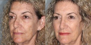 Rhinoplasty-Woman-Simon-Madorsky-MD-Appearance-Center-Cosmetic-Surgery-Orange-County2 - Copy