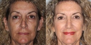 Rhinoplasty-Woman-Simon-Madorsky-MD-Appearance-Center-Cosmetic-Surgery-Orange-County3 - Copy