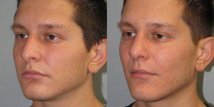 Septoplasty-Turbinoplasty-Cosmetic-Rhinoplasty-Appearance-Center-Newport-Beach-Orange-County-Simon-Madorsky-MD1 - Copy
