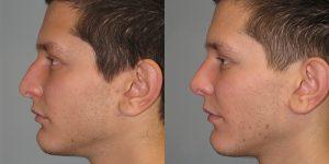 Septoplasty-Turbinoplasty-Cosmetic-Rhinoplasty-Appearance-Center-Newport-Beach-Orange-County-Simon-Madorsky-MD2 - Copy