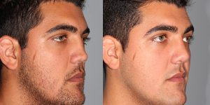 Septoplasty-with-rib-cartilage-graft-Appearance-Center-Newport-Beach-Orange-County-Simon-Madorsky-MD-2 - Copy