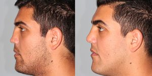 Septoplasty-with-rib-cartilage-graft-Appearance-Center-Newport-Beach-Orange-County-Simon-Madorsky-MD3.1 - Copy