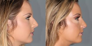 Septorhinoplasty-Simon-Madorsky-MD-Appearance-Center-Newport-Beach-Cosmetic-Surgery