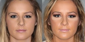 Septorhinoplasty-Simon-Madorsky-MD-Appearance-Center-Newport-Beach-Cosmetic-Surgery2