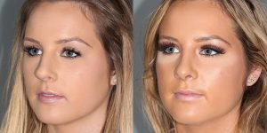 Septorhinoplasty-Simon-Madorsky-MD-Appearance-Center-Newport-Beach-Cosmetic-Surgery3