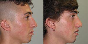 Septorhinoplasty-Simon-Madorsky-MD-Appearance-Center-Newport-Beach-Orange-County2
