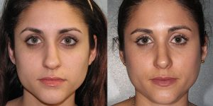 Septorhinoplasty-Simon-Madorsky-MD-Appearance-Center-Newport-Beach1 - Copy