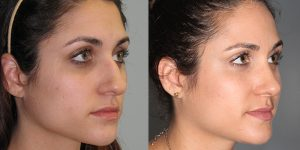 Septorhinoplasty-Simon-Madorsky-MD-Appearance-Center-Newport-Beach2