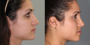 Septorhinoplasty-Simon-Madorsky-MD-Appearance-Center-Newport-Beach3
